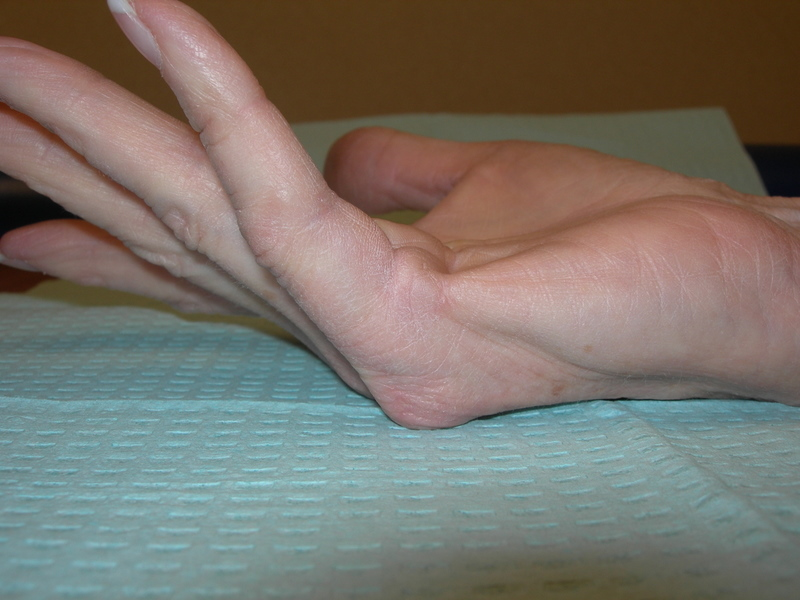 Dupuytren disease of 5th digit right hand, flexion contracture caused by palmar cord