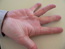 Dupuytren's disease, right hand, palm nodule or bump plus cord development at base of ring finger (4th digit)