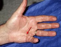 Dupuytren cord and little finger contracture of left hand, clearly defined on palm