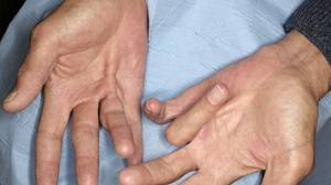 Picture of bilateral Dupuytren's contracture, clearly showing cords and riing finger contracture worse on the left hand