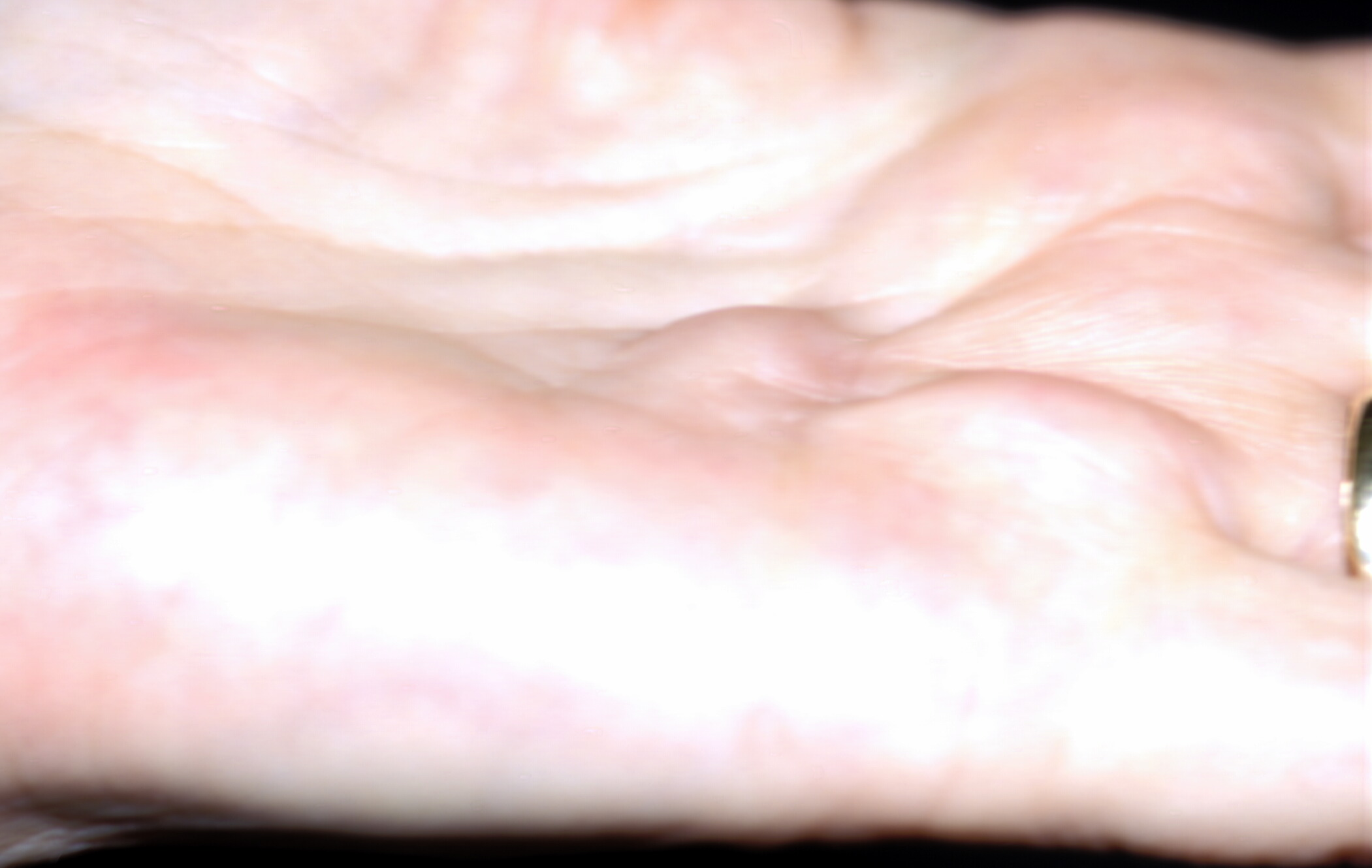 bump on palm of hand dupuytren contracture institute
