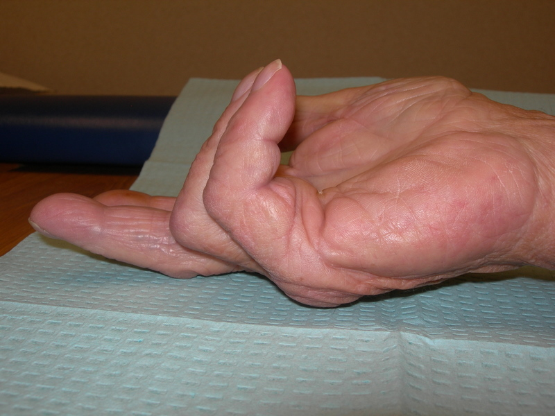 Dupuytren contracture picture showing 4th and 5th finger, pinky and ring finger, contracture toward palm