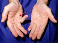 Picture of Dupuytrens, right hand with palm lump at base of pinky finger