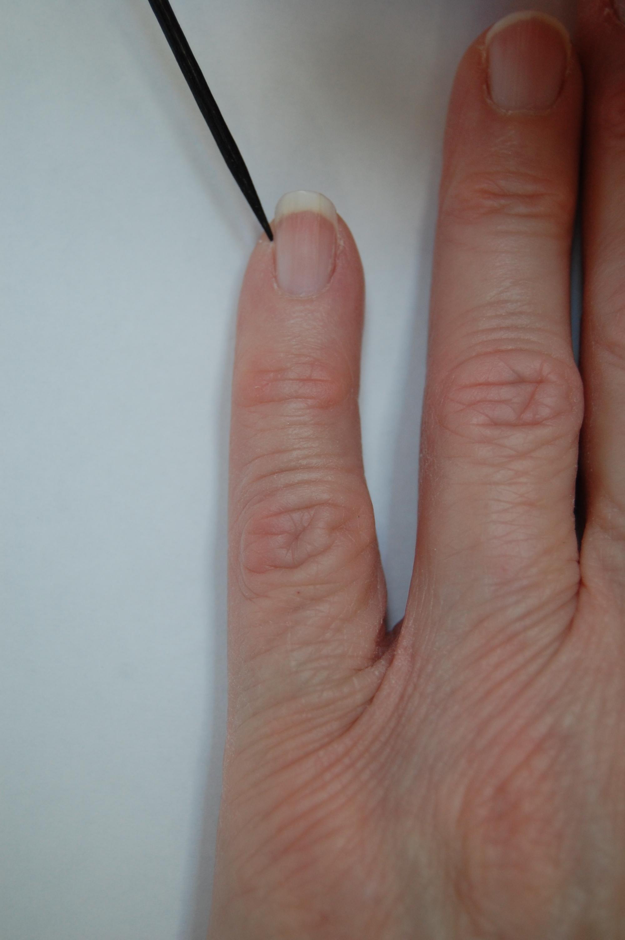 how to fix bent fingers